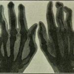 What Causes Arthritis?